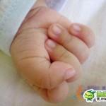 髪の毛が赤ちゃんの指を直撃!指は2倍に膨れ上がり壊死
